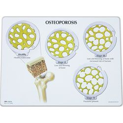 Osteoporosis - Fases