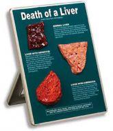 Muerte del Hígado